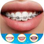 Download Braces Photo Editor 2019 1.1 Free Download APK,APP2019